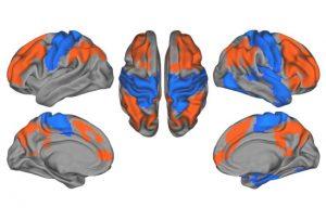 Autism brains