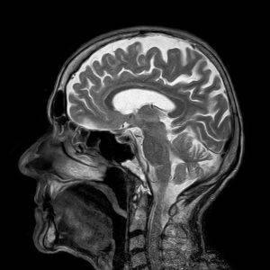 autism spectre brains