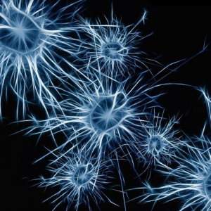 autistic people nerve cells
