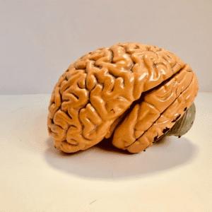 Social Brain Regions of Autistic Men